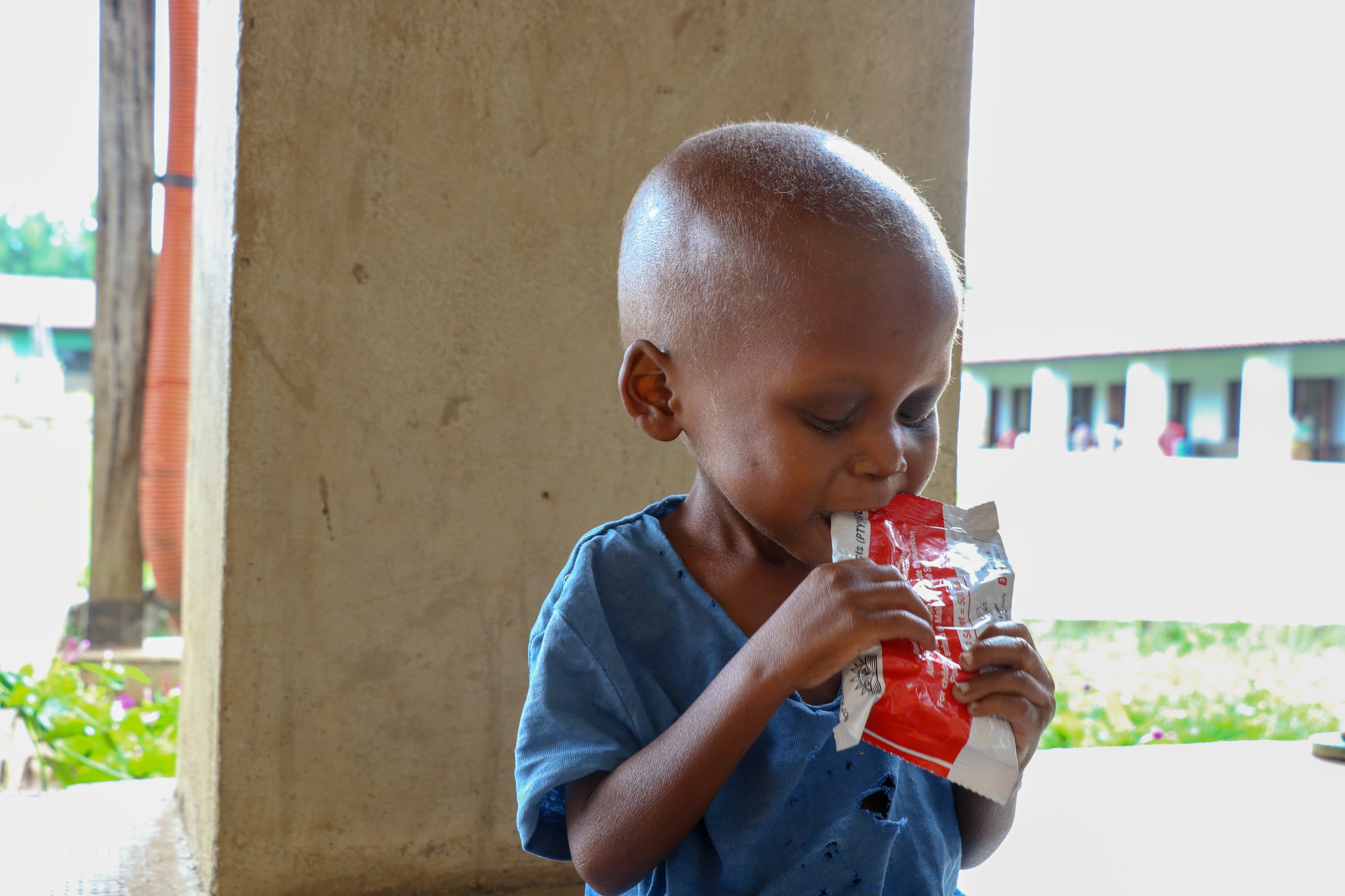 World Vision is supporting health centers and hospitals in Kasai Central to treat malnutrition