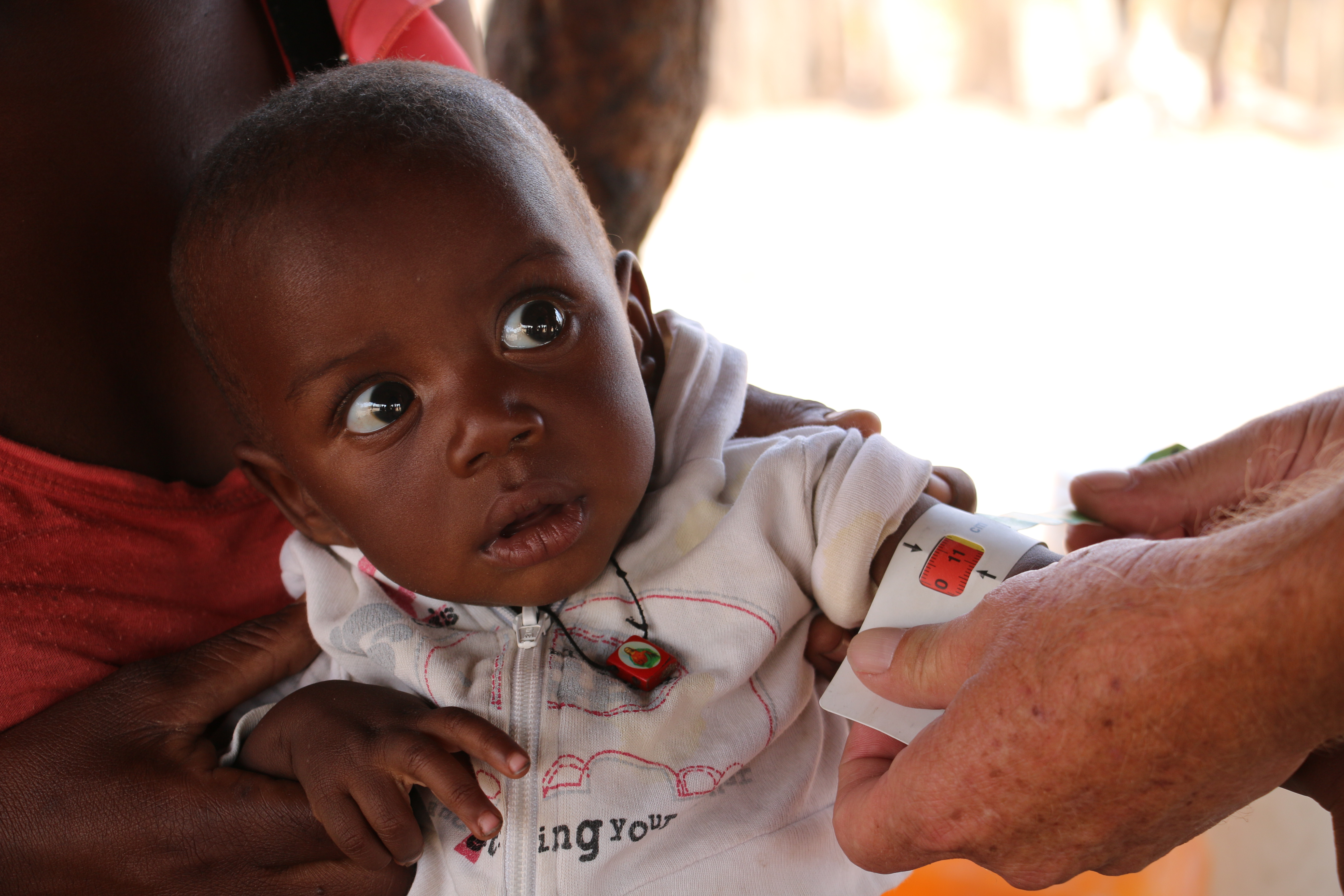 Beto is a six months old boy severely malnourished