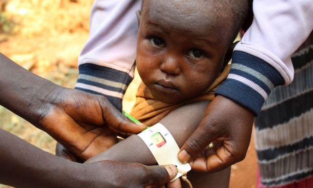 Government Of Germany Helps Fight Against Malnutrition In Burundian Children