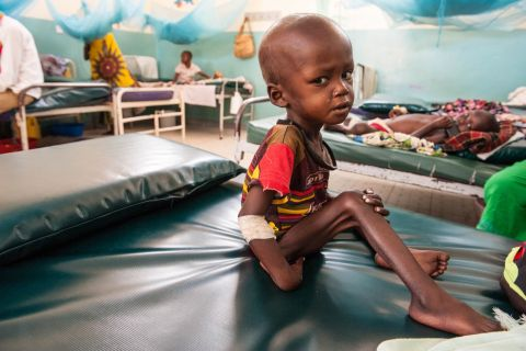 Naroi is barely able to swallow a cap-full of water because of the severe acute malnutrition and thrush that he is facing.