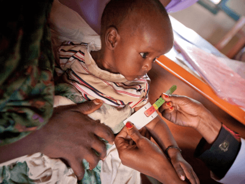Treated malnourished child