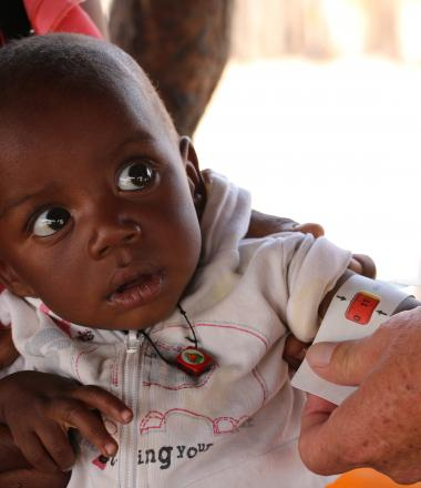 Beto, is tested and treated for malnutrition in Angola