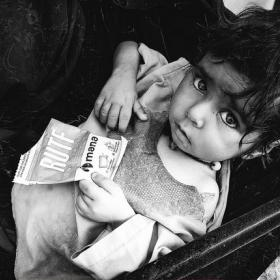 Child holding therapeutic food package