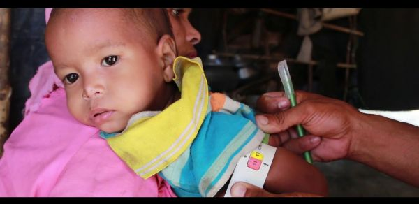 Nutrition support helps Mohammad smile again